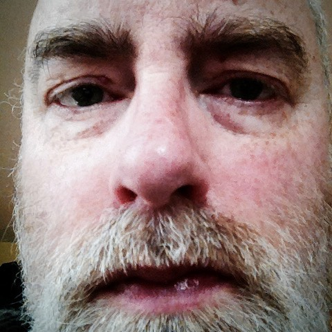 Close-up of my face as I see it reflected when I peer myopically at photos on the cellphone.